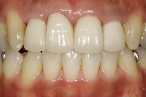 歯の移植は素晴らしい♪ 当院での症例を更新しました。