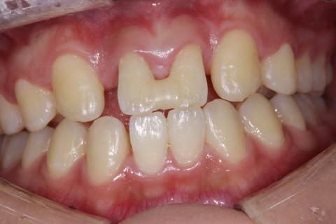 大人の歯が生えない、足りないと言われた方へ